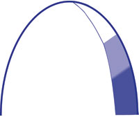 3 Distinct force regions of the Gradient-3® Arch
